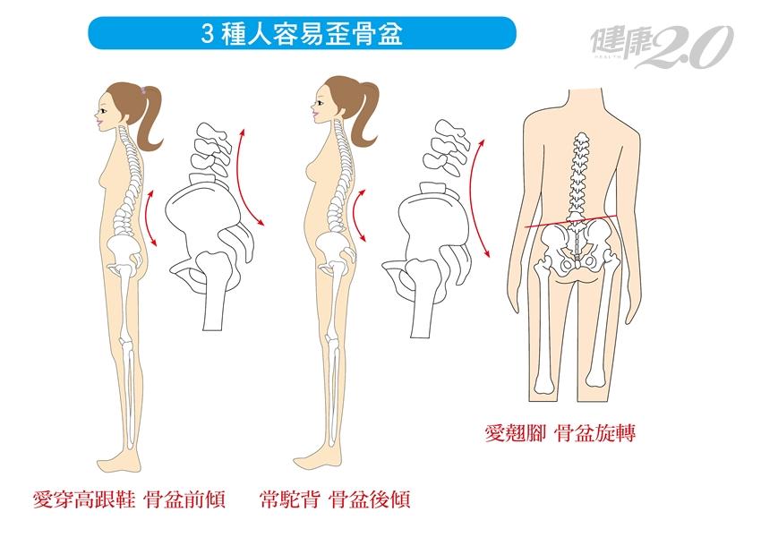 「骨盆不正」難怪腰痠背痛好不了!3生活習慣讓骨盆歪掉