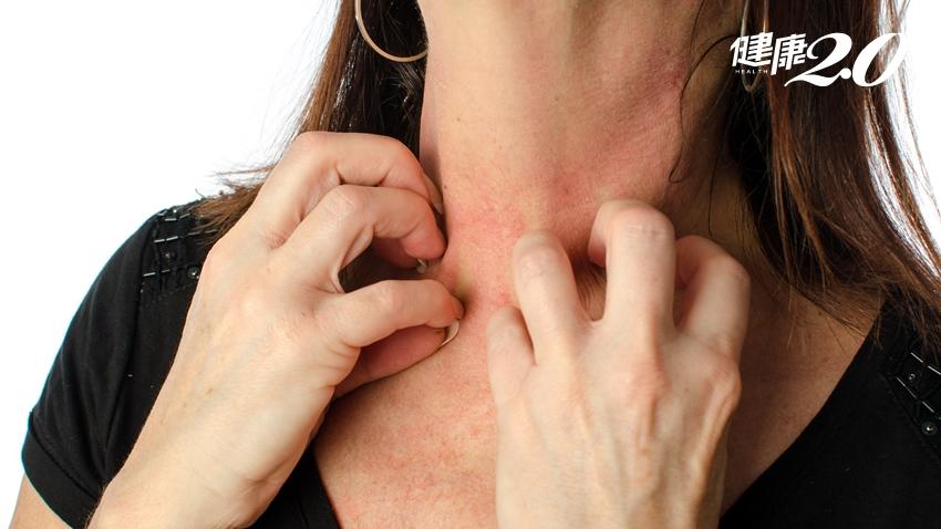 皮膚癢、蕁麻疹老是好不了?快試試中醫「換膚方」有效