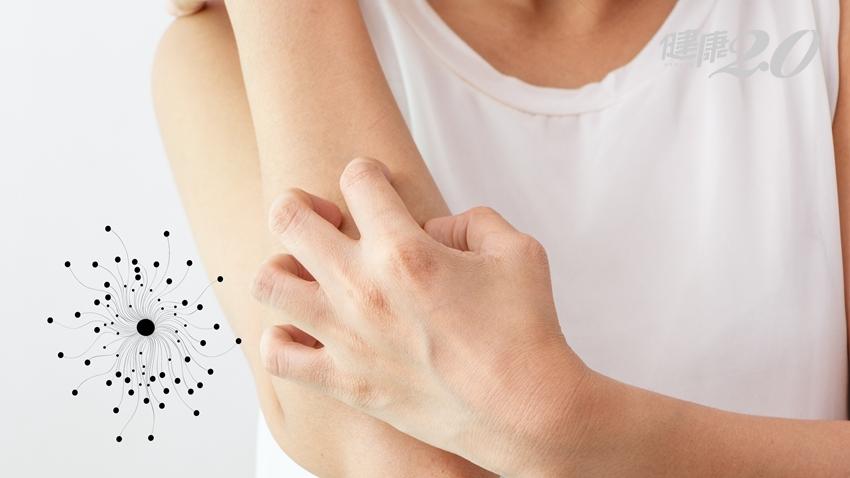皮膚搔癢脫屑、腳癢、頭癢……原來是身體發霉了!