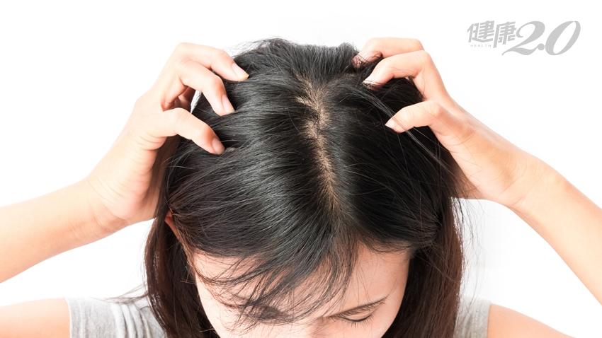 頭皮紅腫刺痛?「對頭皮好」的3個要點,健髮又紓壓
