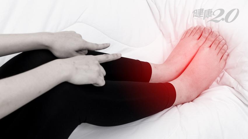 靜脈曲張不只「浮腳筋」 還會腳踝腫、走不遠、夜尿多