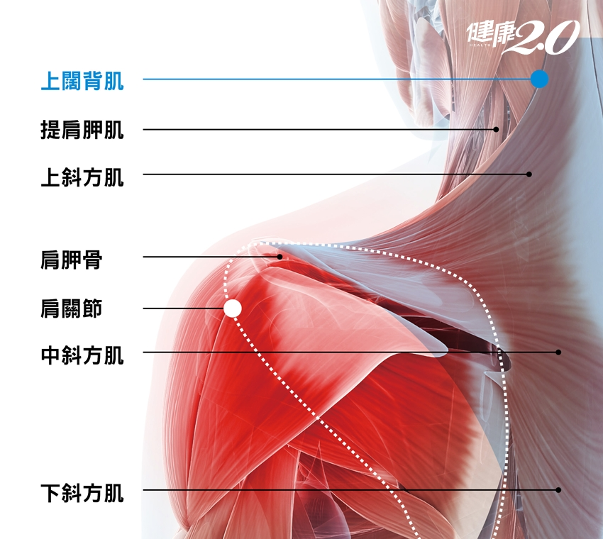 你喜歡單肩揹包包?高低肩、肌腱炎…5種傷害很快報到