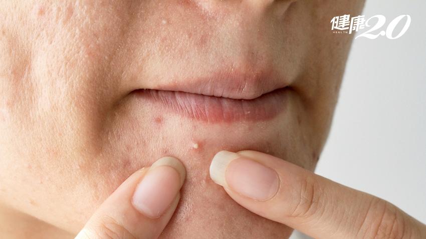 臉上、頭皮、背部長痘?從部位看健康 醫師教你「飲食法」去痘