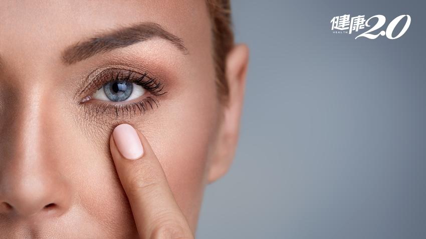 接睫毛、愛畫眼妝者當心!起床眼周出現白屑恐非眼屎,而是蟲蟲排泄物