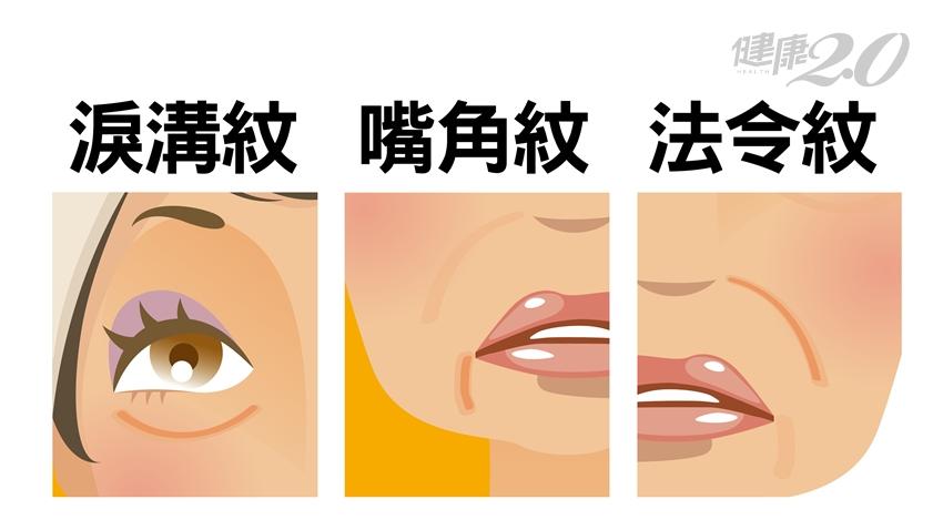 法令紋、嘴角紋、淚溝紋害你老10歲!除「三八紋」防衰老術