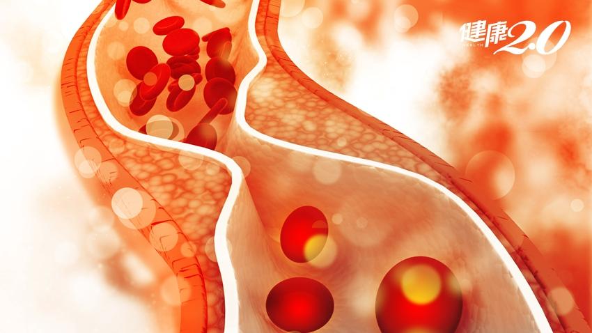 膳食纖維很給力!這2類食物清除膽固醇、不便祕、不怕胖