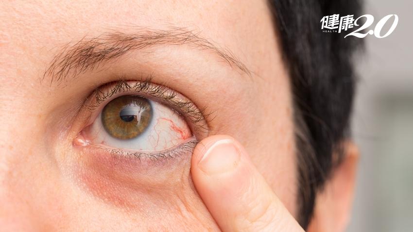 眼睛發炎失明,竟是關節炎搞鬼!哪些全身性疾病會導致眼病?
