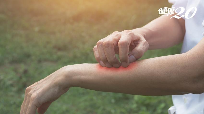 天氣一熱就「皮在癢」?常見3大搔癢症,你是哪一種?