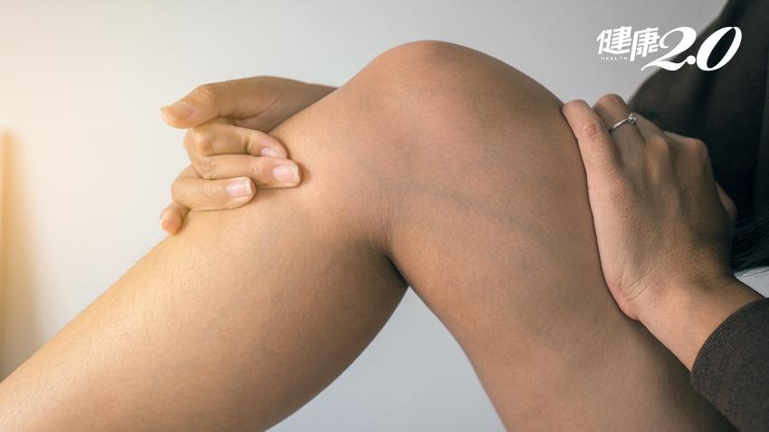 3招消水腫!下肢水腫≠腎臟病 醫師:這種水腫才危險