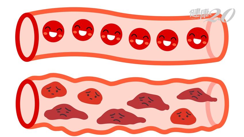 有效預防動脈硬化!吃這4種天然抗氧化物就夠了