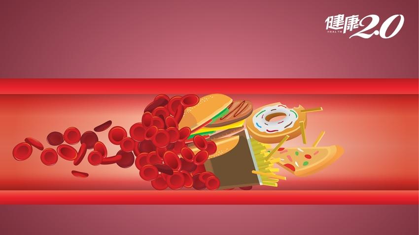 不讓膽固醇找麻煩!一張表告訴你,哪些食物高膽固醇