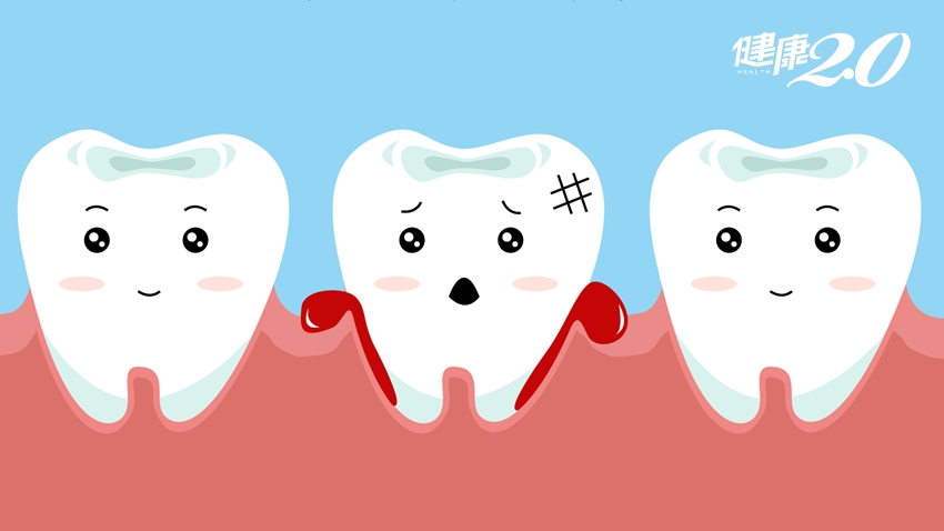 牙齦流血是健康亮紅燈!置之不理…慢性發炎「延燒」全身
