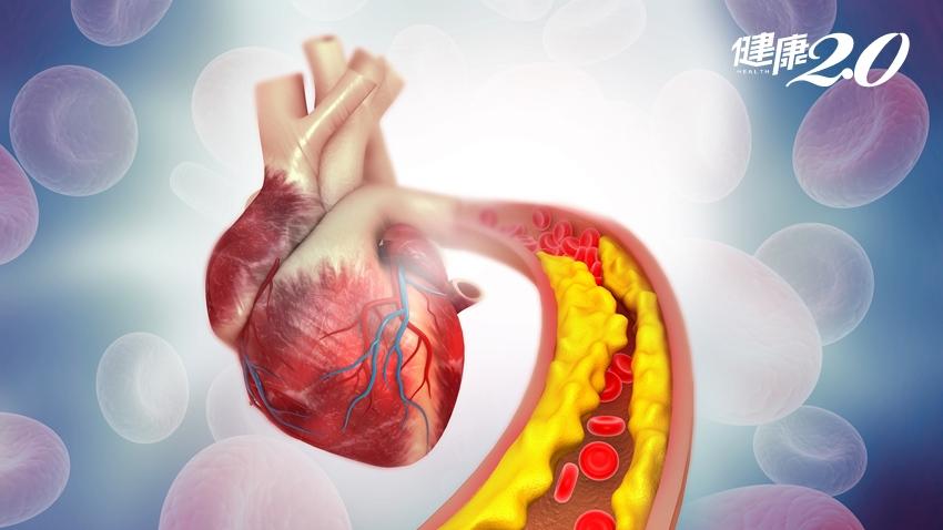 血脂太高靠飲食運動就好?心臟權威提醒別犯了這3 大迷思