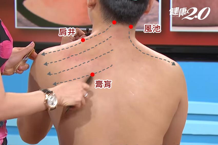 頭暈、噁心想吐…吳明珠傳授「刮痧」自療法 緩解輕微中暑