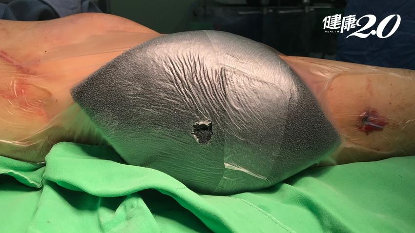 長腿妹騎車犁田皮膚壞死 「負壓傷口療法」助癒合不留疤