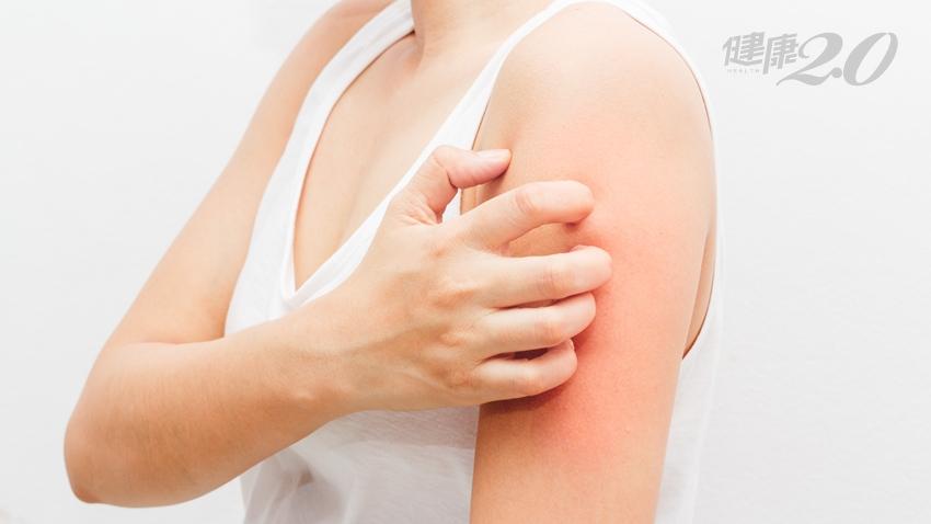 關節痛、皮膚過敏發癢 竟是因為吃了這種「健康食物」