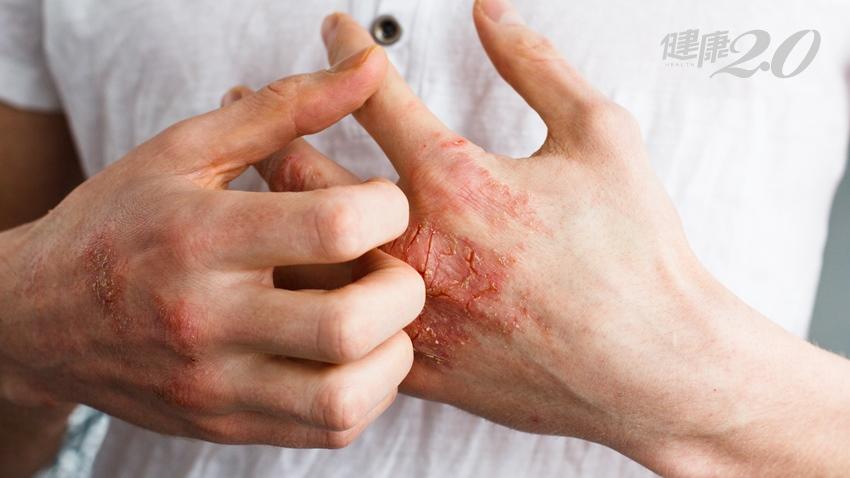 工程師癢到抓破皮、血染床單還止不了  醫:這病不是小問題
