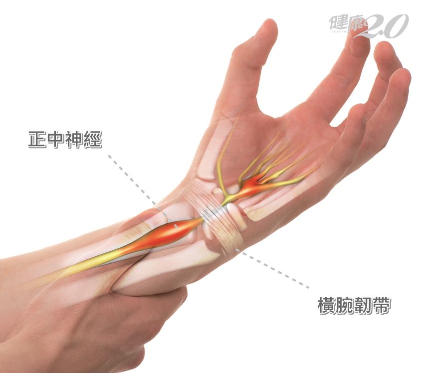 「三指半」痠麻、拇指根部沒肌肉…你有腕隧道症候群!