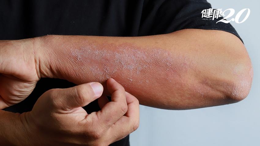 每到秋冬皮膚搔癢、嚴重脫屑 跟著中醫調理體質揮別乾燥