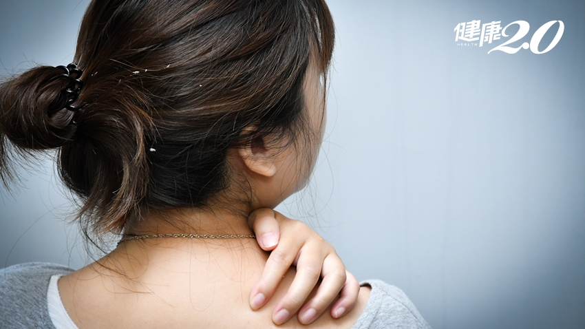 狂掉髮、頭皮屑掉滿地…全台近萬人被「乾癬」糾纏,治療緩慢陷瓶頸!
