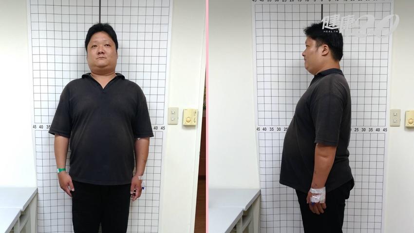 胖到半夜沒呼吸、吃飯昏倒不醒 這樣做90天甩肉32公斤找回健康