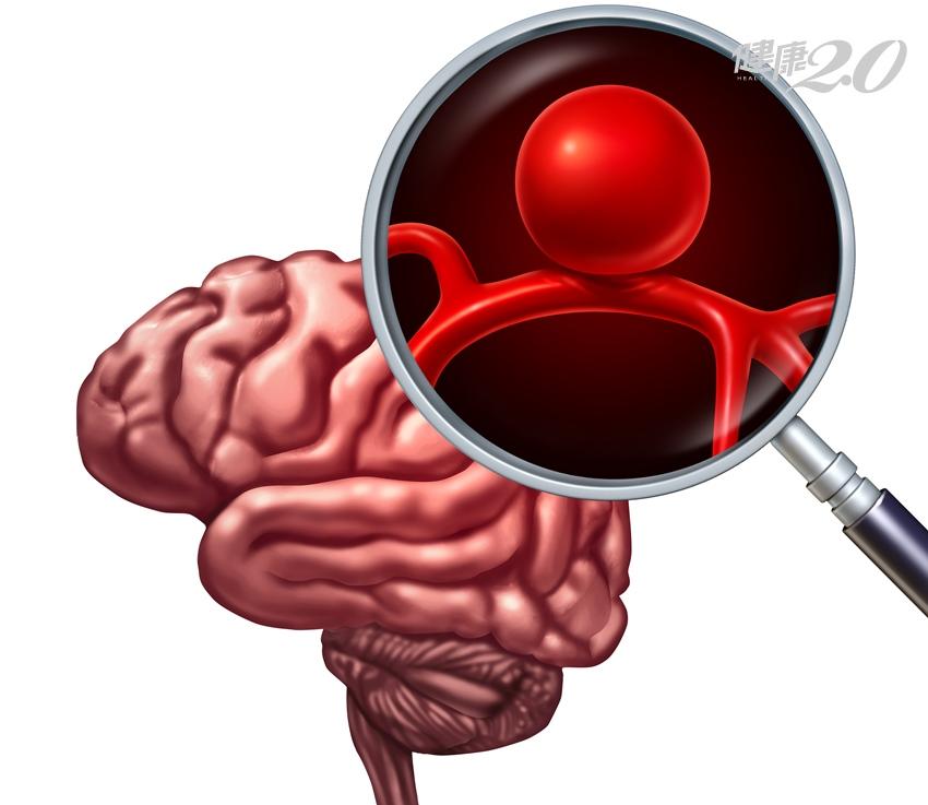 袁惟仁腦溢血開刀發現腫瘤 這樣可及早拆解不定時炸彈