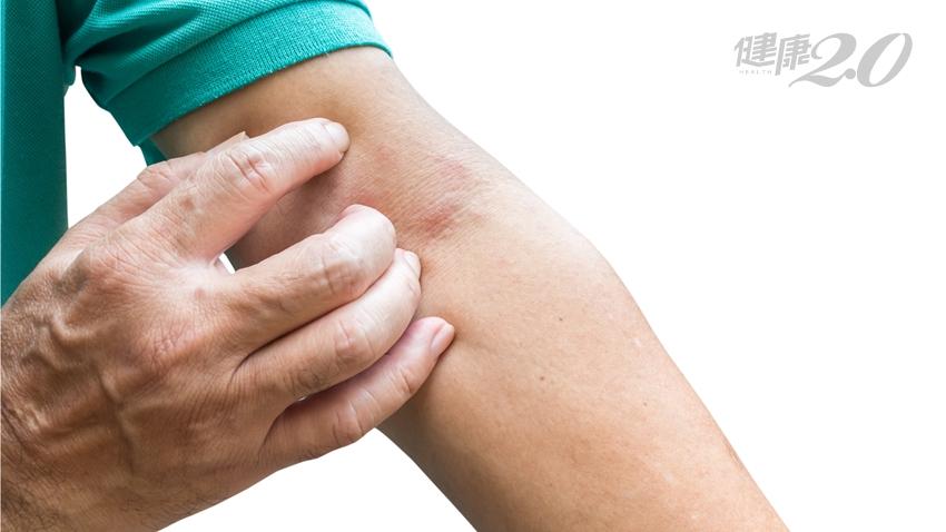 換季脫皮乾癢?快幫皮膚CPR!「3步驟」對付異位性皮膚炎