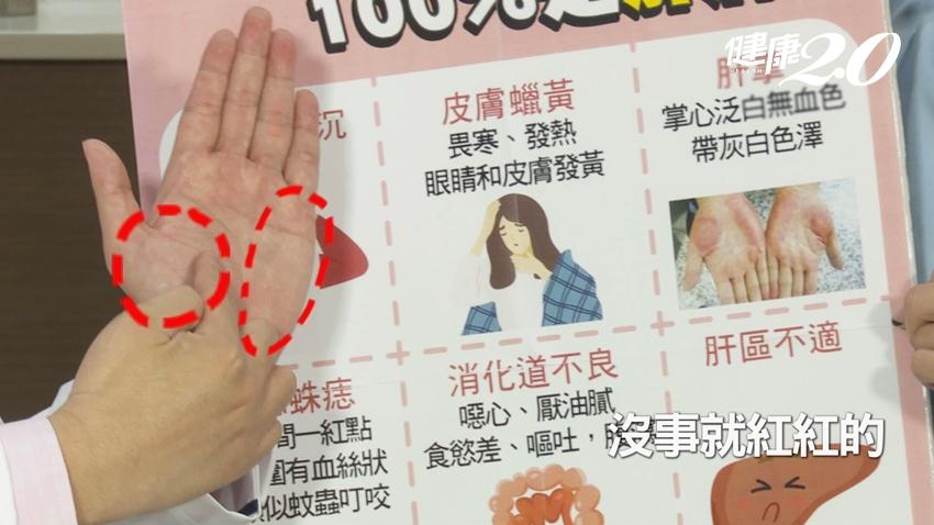 出現9大症狀,代表肝病上身?江坤俊醫師一次說清楚