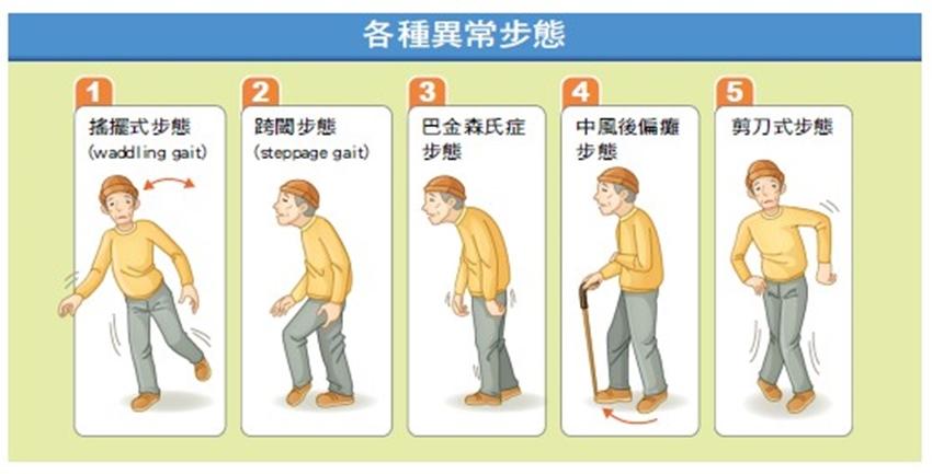 腦部有病變 看走路的步態可知