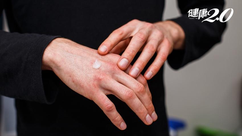 皮膚乾癢好不了?醫:別怕擦類固醇,正確使用好得快