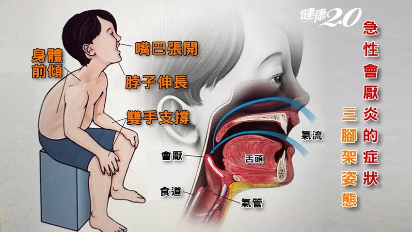 別把喉嚨痛當成小感冒!吞嚥困難小心「會厭炎」致命