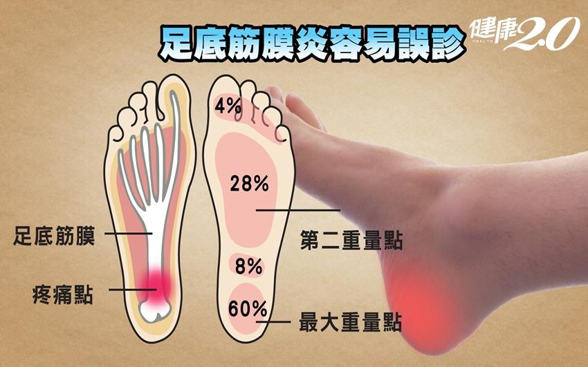 「足弓塌陷」小心引爆足底筋膜炎!每天10分鐘足弓矯正運動