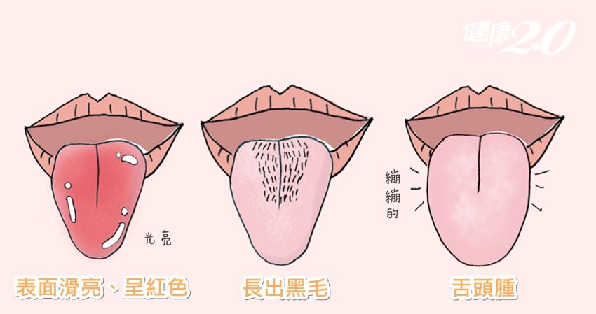 伸出舌頭看一看 15個身體大小毛病通通現形!