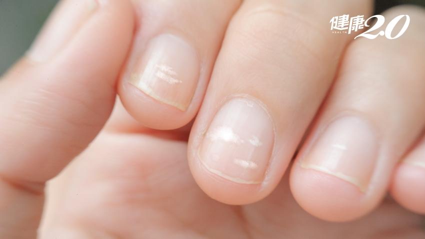 一按就痛?指甲透露出的健康密碼