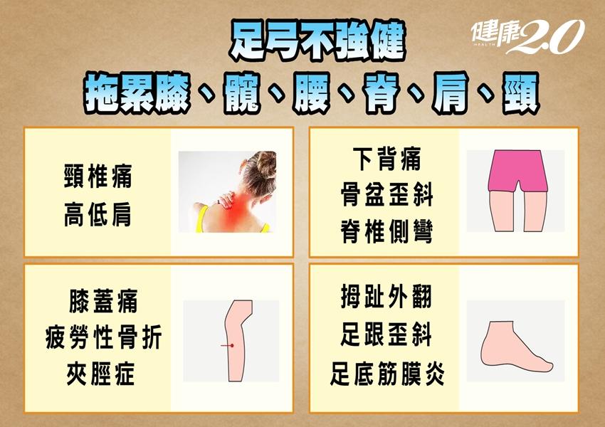長期膝蓋痛、腰背痛?小心「足弓塌陷」惹禍!1招揪出隱形扁平足