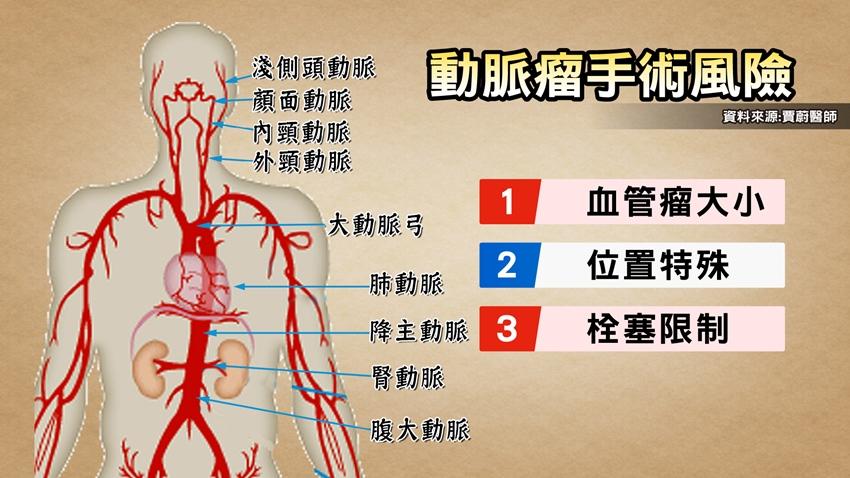 腦動脈瘤破裂非死即癱 醫:「這年紀」就該檢查揪出不定時炸彈