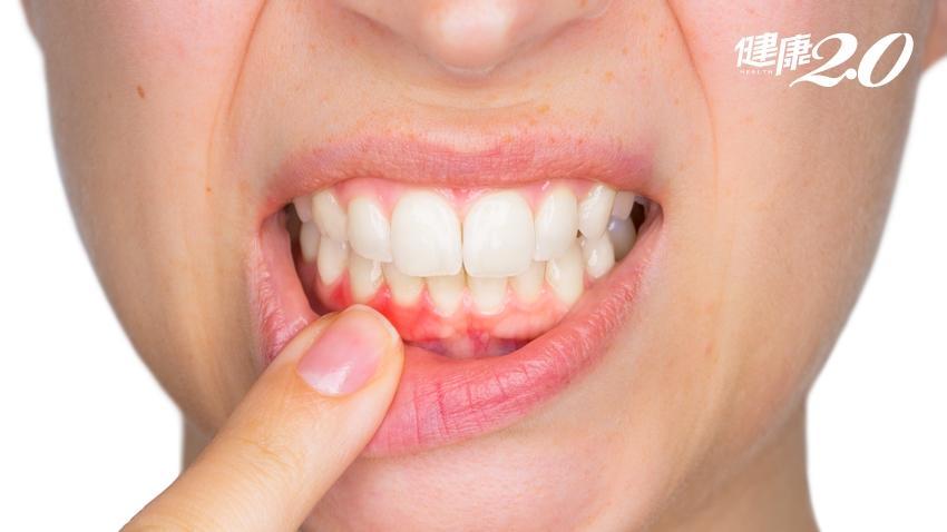 「牙齦顏色」暗示你有沒有牙周病 這2種顏色就是發炎了