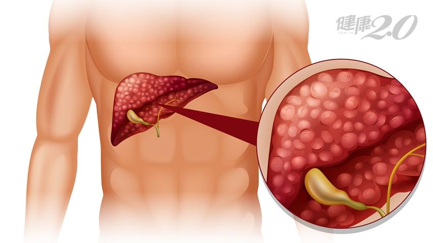 肝癌復發腫瘤愈長愈大,多次手術備受煎熬 二線用藥才有轉機