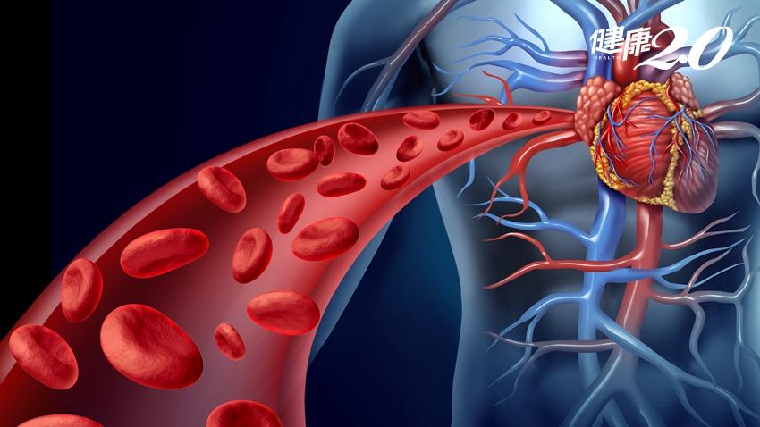 怕中風、心臟病? 這3種食物能幫助血管通暢