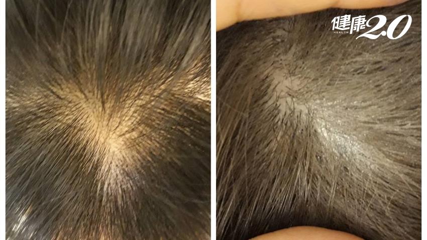 經常染髮小心頭皮潰瘍 安全染髮必知4常識