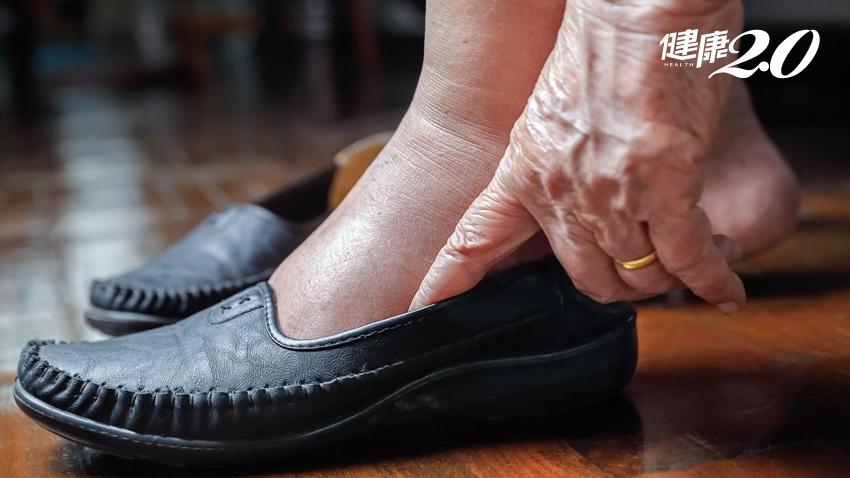 近七成糖尿病足是因穿錯鞋!醫:糖友必知5大挑鞋重點