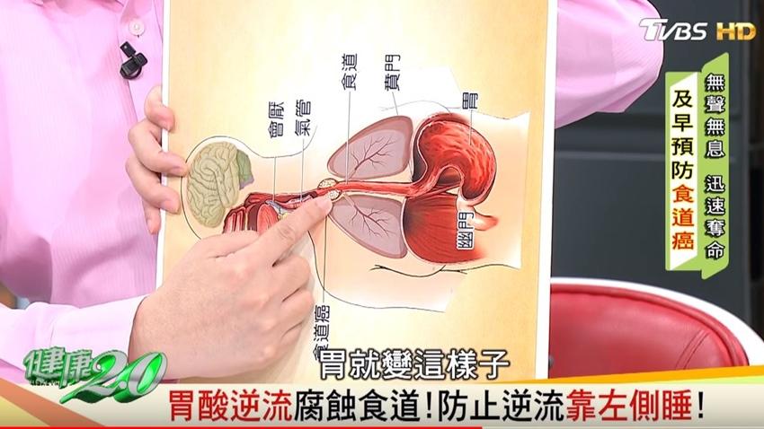 尾牙聚餐多 小心胃食道逆流 達人王明勇喝這杯防胃酸