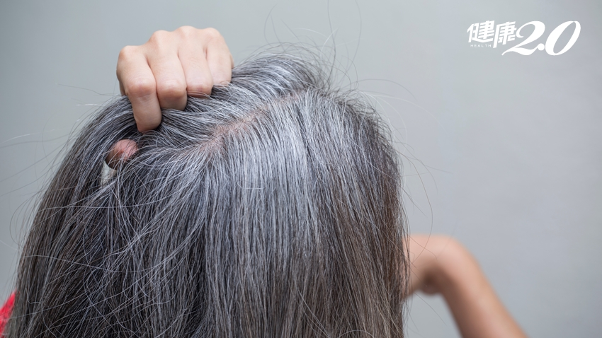 白髮是體內老化的前兆!白髮愈來愈多 專家說還有這些原因
