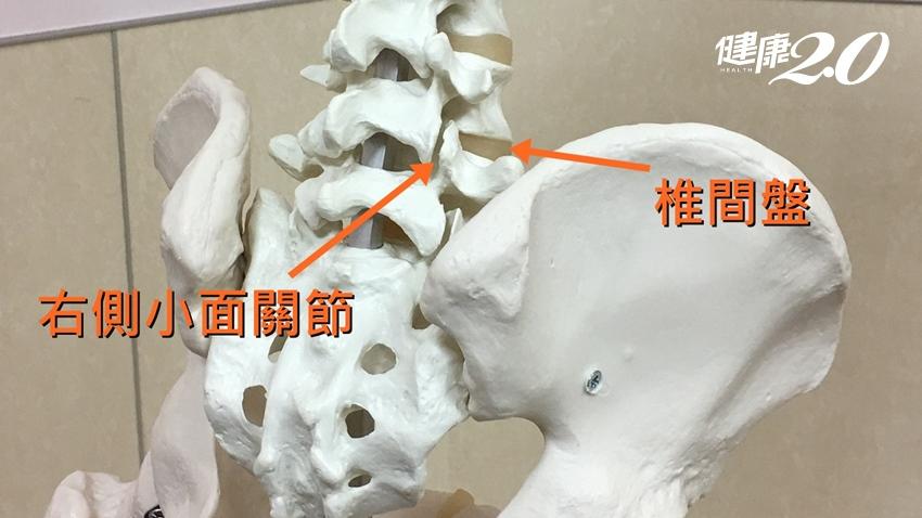 下背痛到歪腰、無法久站 竟是小面關節症候群作祟