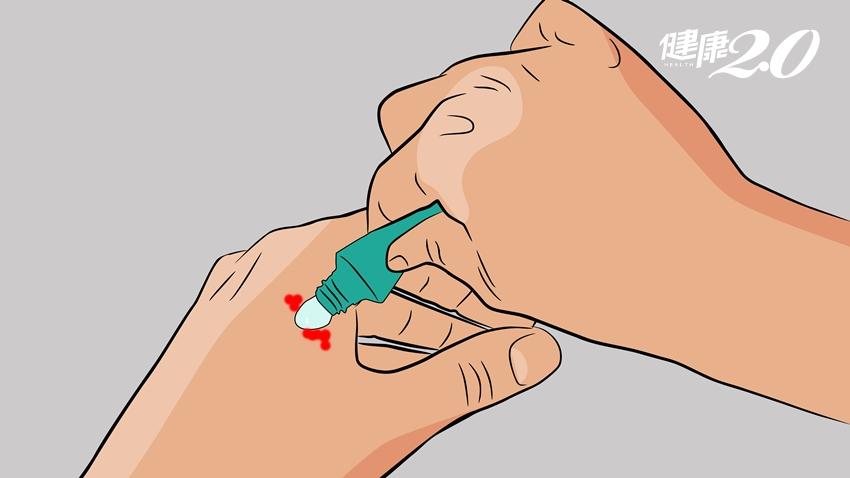 用對「液體OK繃」!傷口塗一層就防水,這種傷口絕對不能用