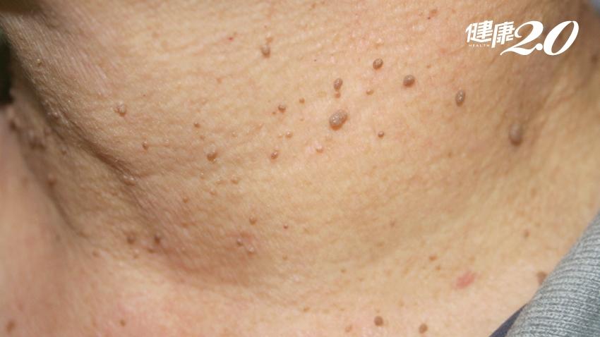 皮膚息肉不美觀,用線綁起來就能去除?