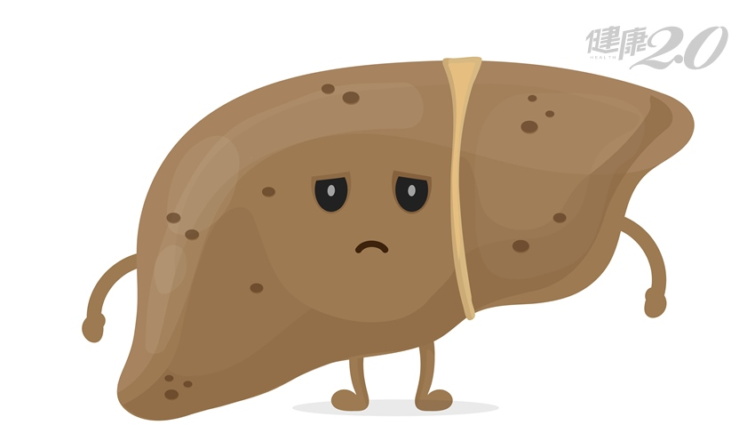 沒亂吃藥,為何肝指數這麼高?3招逆轉脂肪肝