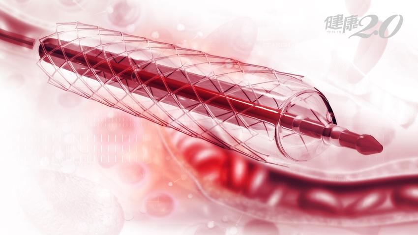血管堵住了!心臟支架如何選?裝了就一勞永逸?