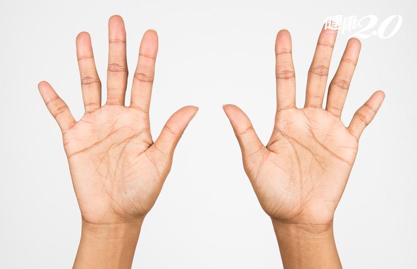 雙手十指養生:脹氣、心肺差、腰痠該按哪一指?