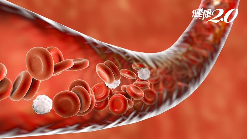 過多「自由基」會堵血管、腦梗塞!日醫教你身體不生鏽的關鍵